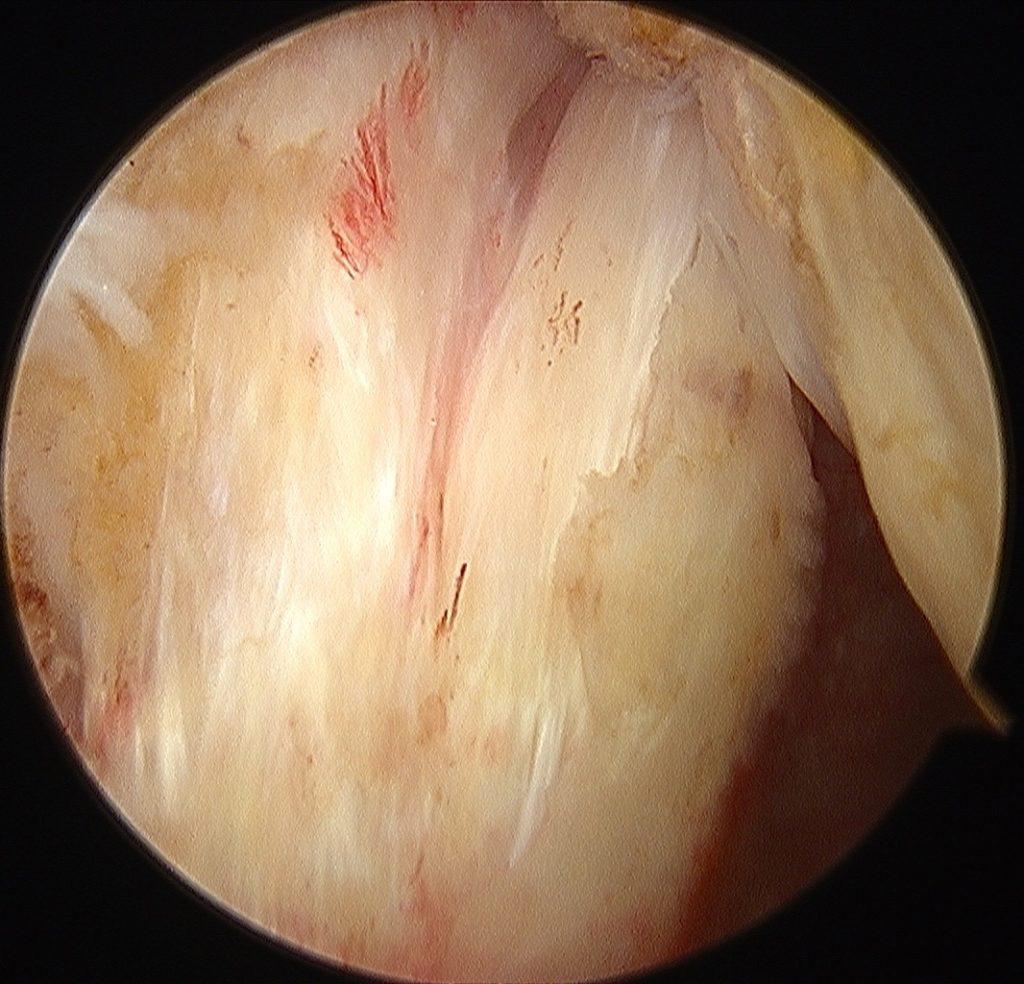 rotura del tendon subescapular