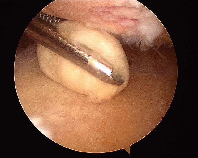 artrosis-hombro-limpieza-artroscopica-03