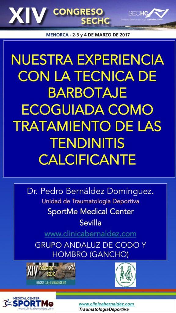 NUESTRA EXPERIENCIA CON LA TECNICA DE BARBOTAJE ECOGUIADA COMO TRATAMIENTO DE LAS TENDINITIS CALCIFICANTE