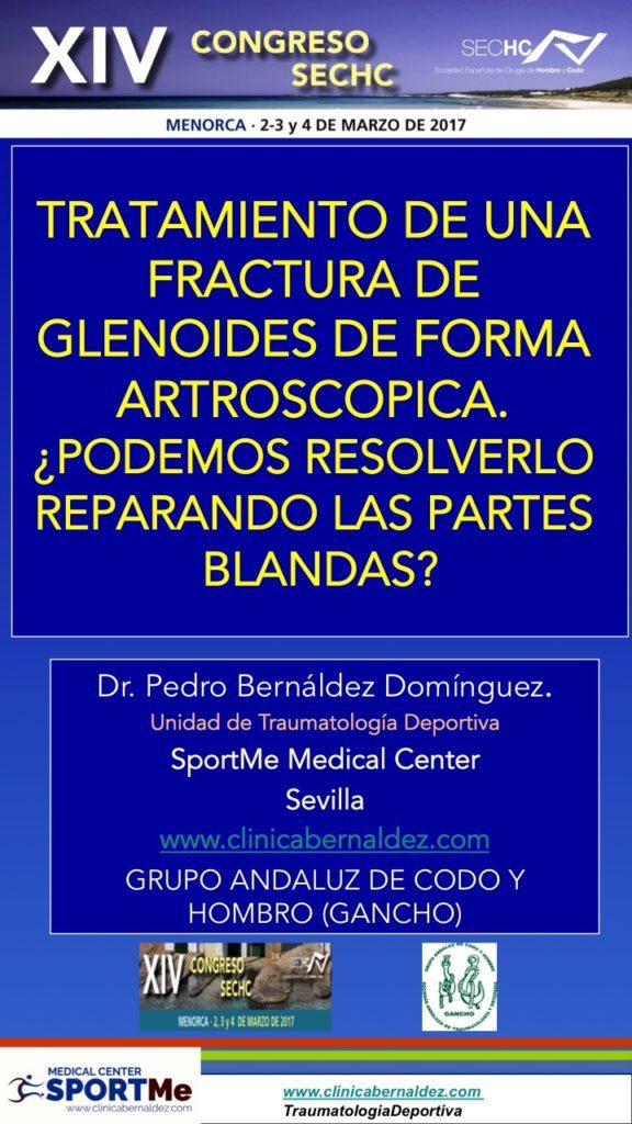 TRATAMIENTO DE UNA FRACTURA DE GLENOIDES DE FORMA ARTROSCOPICA. ¿PODEMOS RESOLVERLO REPARANDO LAS PARTES BLANDAS?