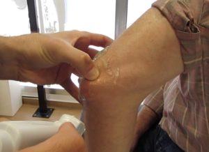 Síndrome del tríceps en resorte o Snapping tríceps syndrome