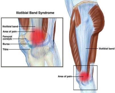 Sindrome de la cintilla iliotibial o Rodilla del Corredor