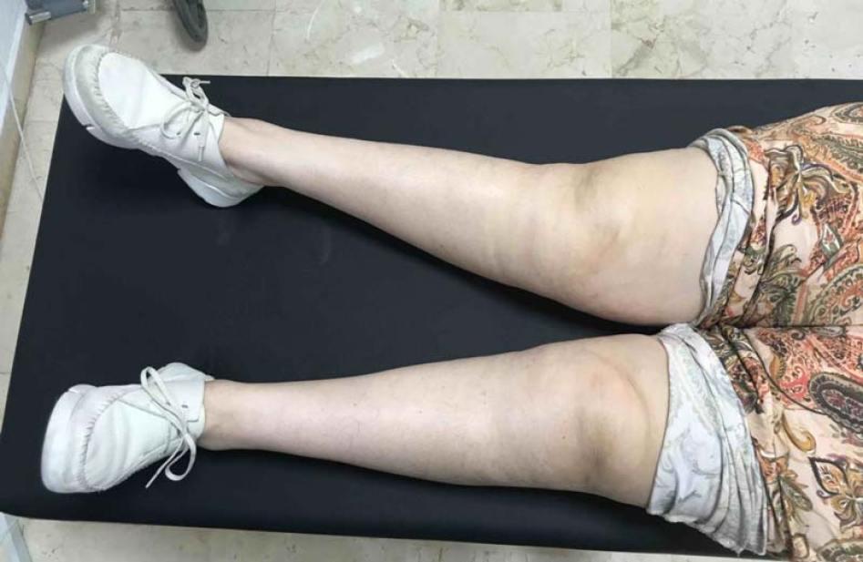 Genu valgo o rodillas en X. Expertos en cirugia de rodilla.