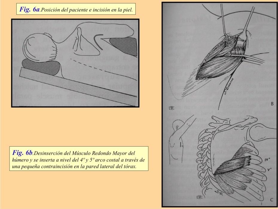 La escápula alada.Parálisis traumática del nervio torácico largo