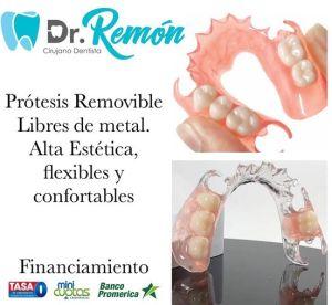Contamos con tratamientos para toda la familia. Prótesis Removible Libres de metal. Alta Estética, flexibles y confortables.