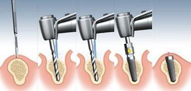 pasos-colocacion-implante-dental