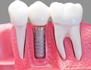 70 preguntas frecuentes Implantes Dentales Clínica Chamberí
