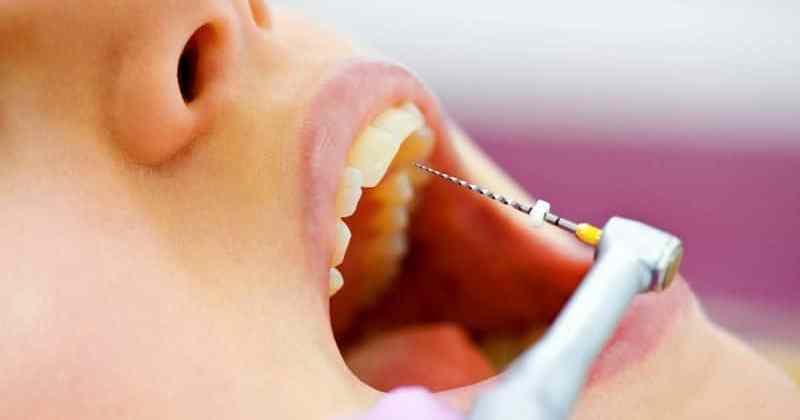 32 preguntas frecuentes sobre la Endodoncia