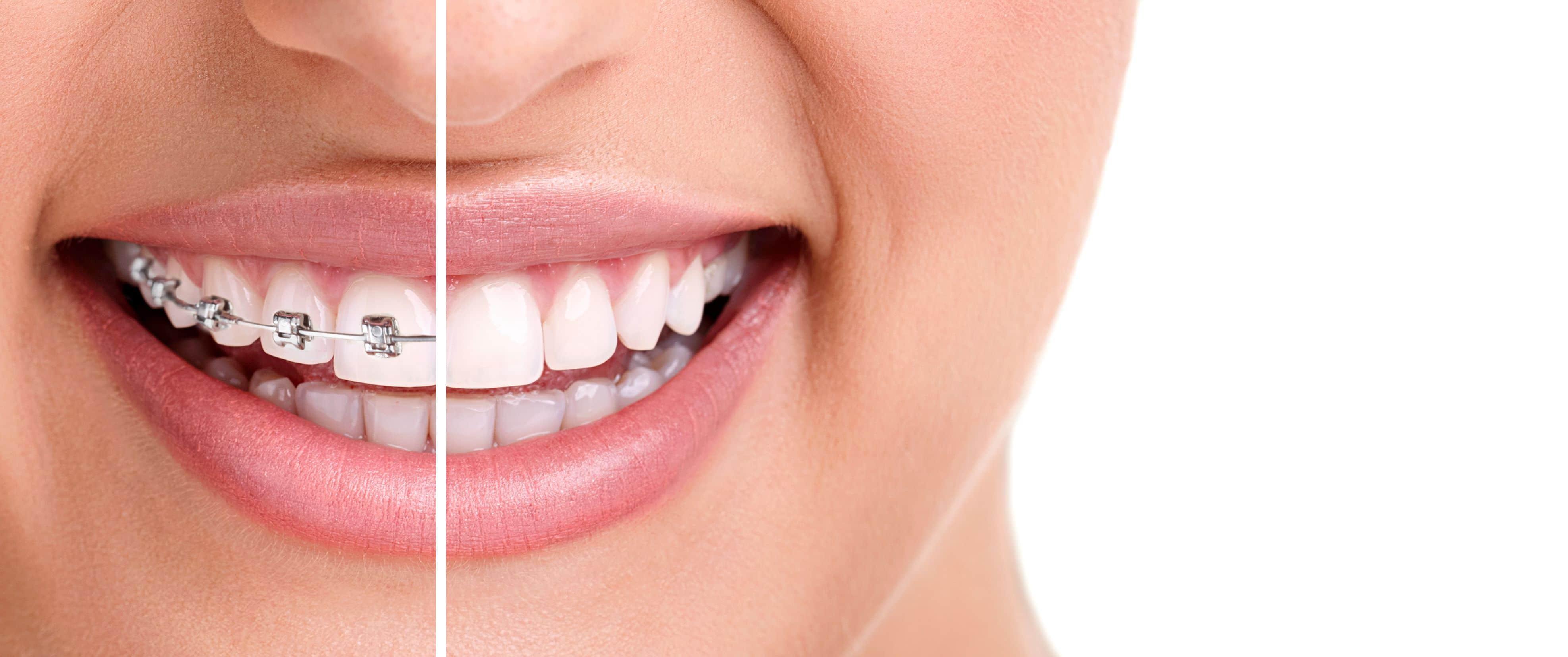 34 Preguntas Frecuentes Sobre La Ortodoncia Clínica Dental
