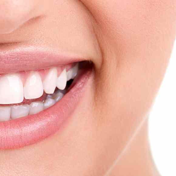 34 preguntas frecuentes sobre la ortodoncia