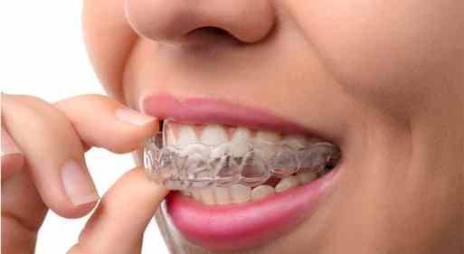 P-16-05-05-Ferula-de-descarga-dental