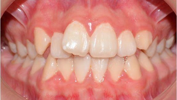 clinica-dental-moreno-cabello-Estetica-y-protesis