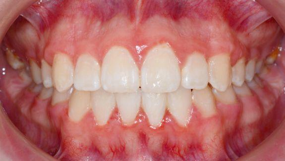 clinica-dental-moreno-cabello-Estetica-y-protesis-antes-del-tratamiento