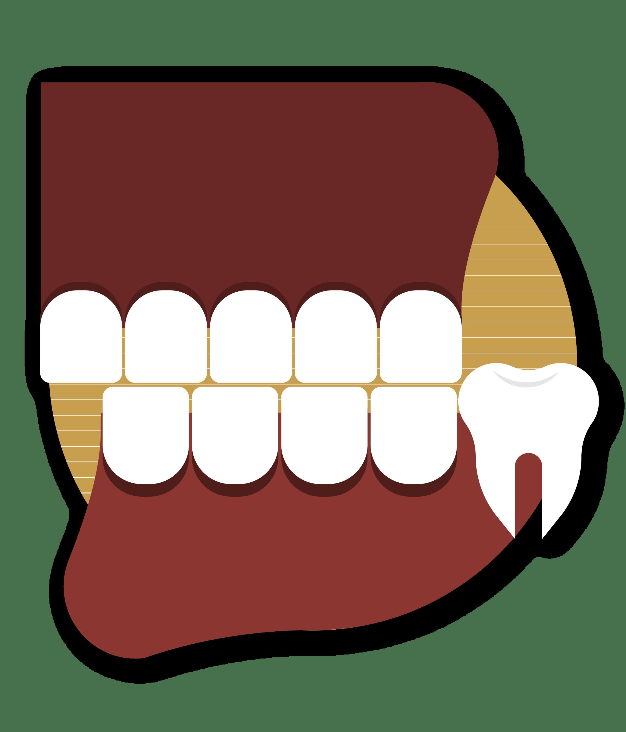 clinica dental morenocabello Mordidas cruzadas