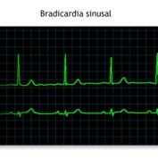 La reducción de la frecuencia cardíaca es una adaptación fisiológica al ejercicio.