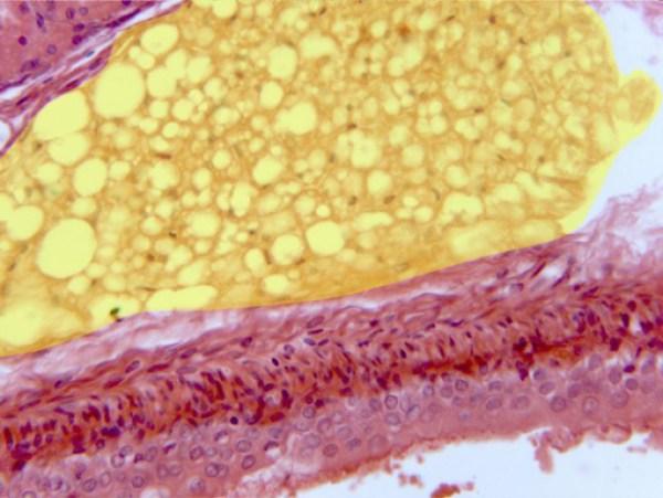 Las células madre del tejido adiposo  promueve la revascularización de los tejidos dañados y la formación de nuevos vasos sanguíneos, frenando además la muerte celular, según una revisión de estudios.