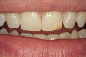 Antes casos | Estética Dental
