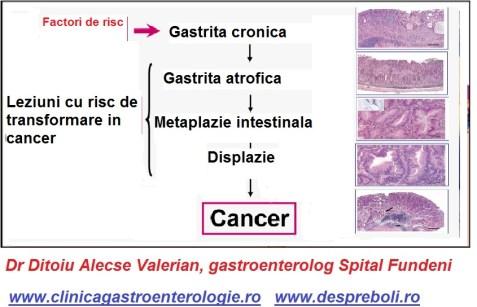 aparitia-cancerului-gastric