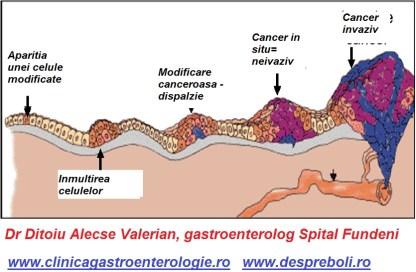 evolutia-cancerului