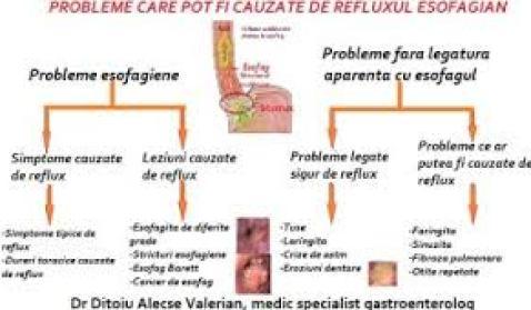 Simptome de reflux gastroesofagian