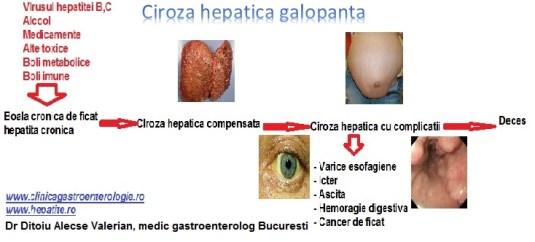 Ciroza hepatica hepatica galopanta