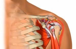 tendinite ombro tratamento