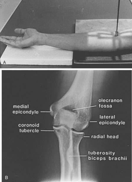 Elbow X Ray Anatomy - Anatomy Drawing Diagram