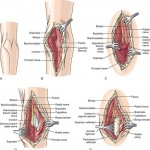 Surgical Exposures of the Elbow
