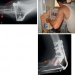 Current Concepts in Fractures of the Distal Humerus