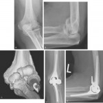 Unlinked Arthroplasty
