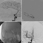 Neuroimaging: Interventional Neuroradiology: Neurological Endovascular Therapy in Hemorrhagic and Ischemic Strokes