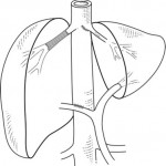 Vascular reconstruction techniques