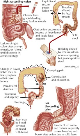 Anorectal Diseases | Clinical Gate