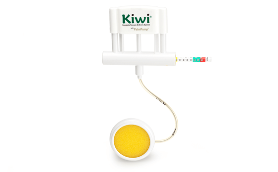 Kiwi Complete Vacuum Delivery System - Clinical ...