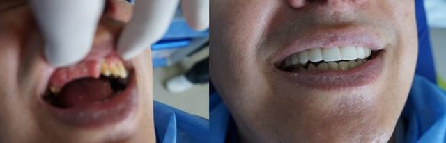 Clínica implantes Colombia