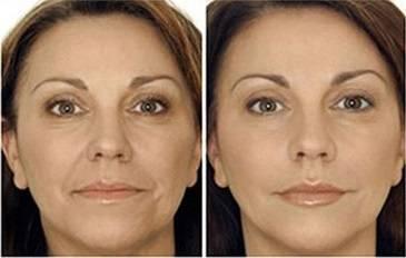 Estética Facial Medellín