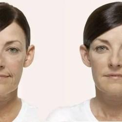 rejuvenecimiento Radiesse-antes-después-rejuvenecimiento