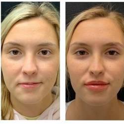Aumento-de-labios-Medellín