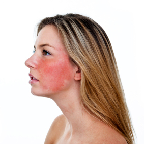 facial rosacea current trials clinical partners llc