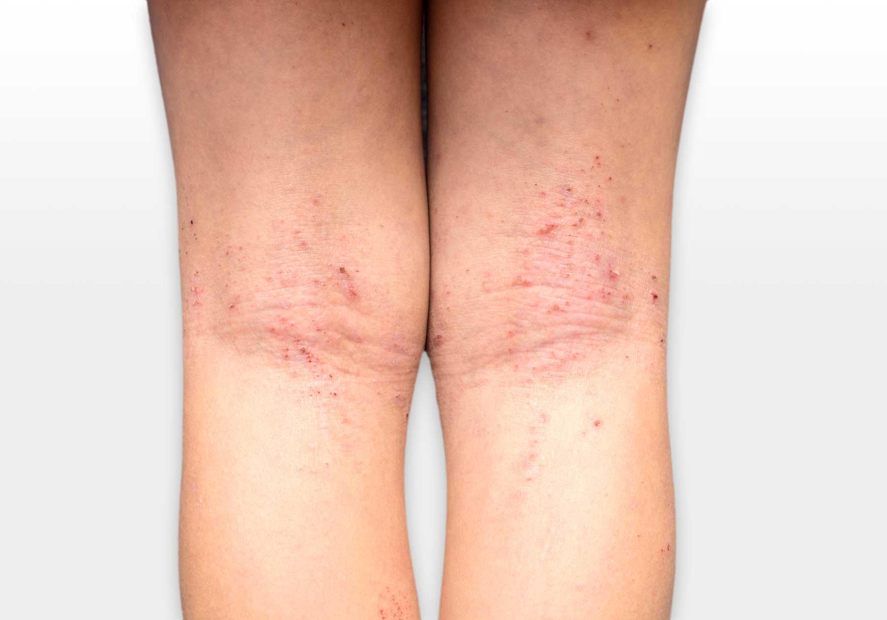 New Trial Added: Atopic Dermatitis (Eczema)