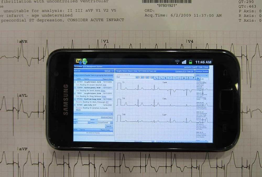 Cloud-based ECG Management System