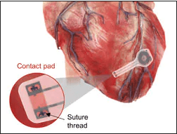 Dissolving Pacemaker Impressive in Early Research