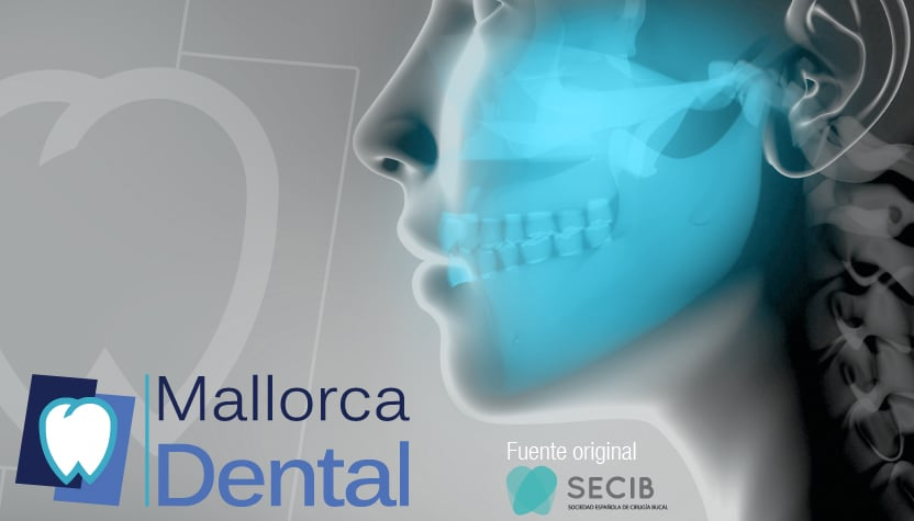 Detección precoz del cáncer bucal