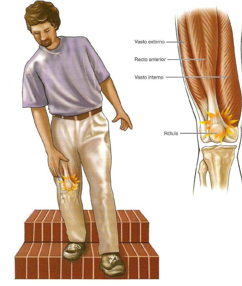 Qué es un edema óseo y cómo debes curarlo?