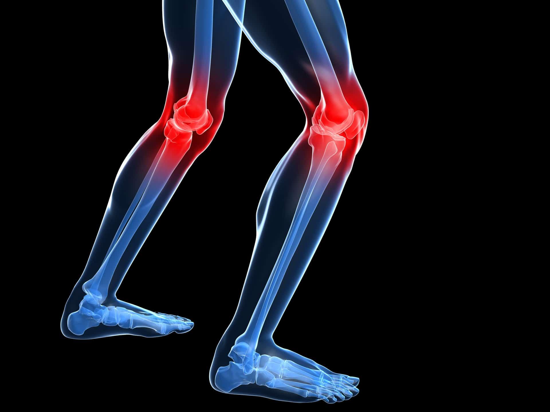 Todos sufrimos dolor de rodilla: Síntomas y causas más comunes