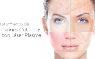 Tratamiento de Lesiones Cutáneas con Láser Plasma