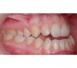 01-ortodoncia-cirugia