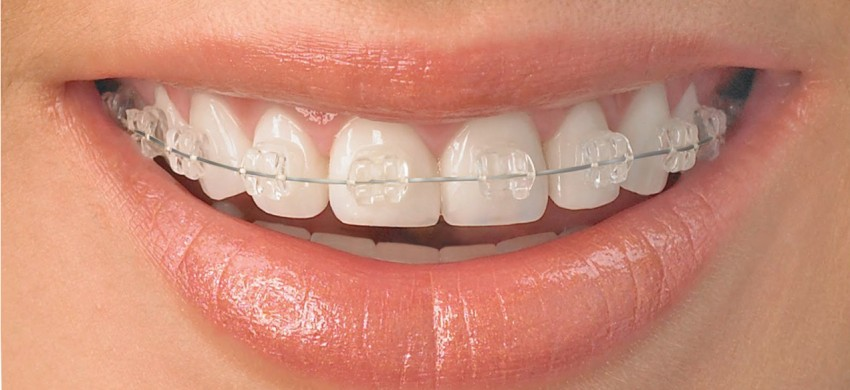 01-tratamiento ceramica ortodoncia