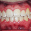 brackets-esteticos-convencionales-despues-02