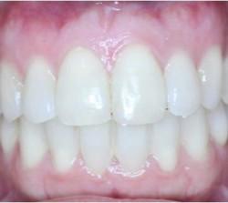 clinica-ortodoncia-valencia-soler-036